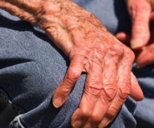 Illustration de l'article Une journée mondiale pour comprendre la maladie de Parkinson