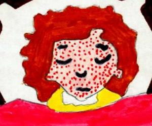 Illustration de l'article Que faire en cas de varicelle ?