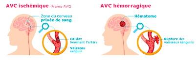 Types d'AVC