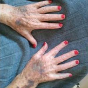 Aide en ménage chez les personnes âgées